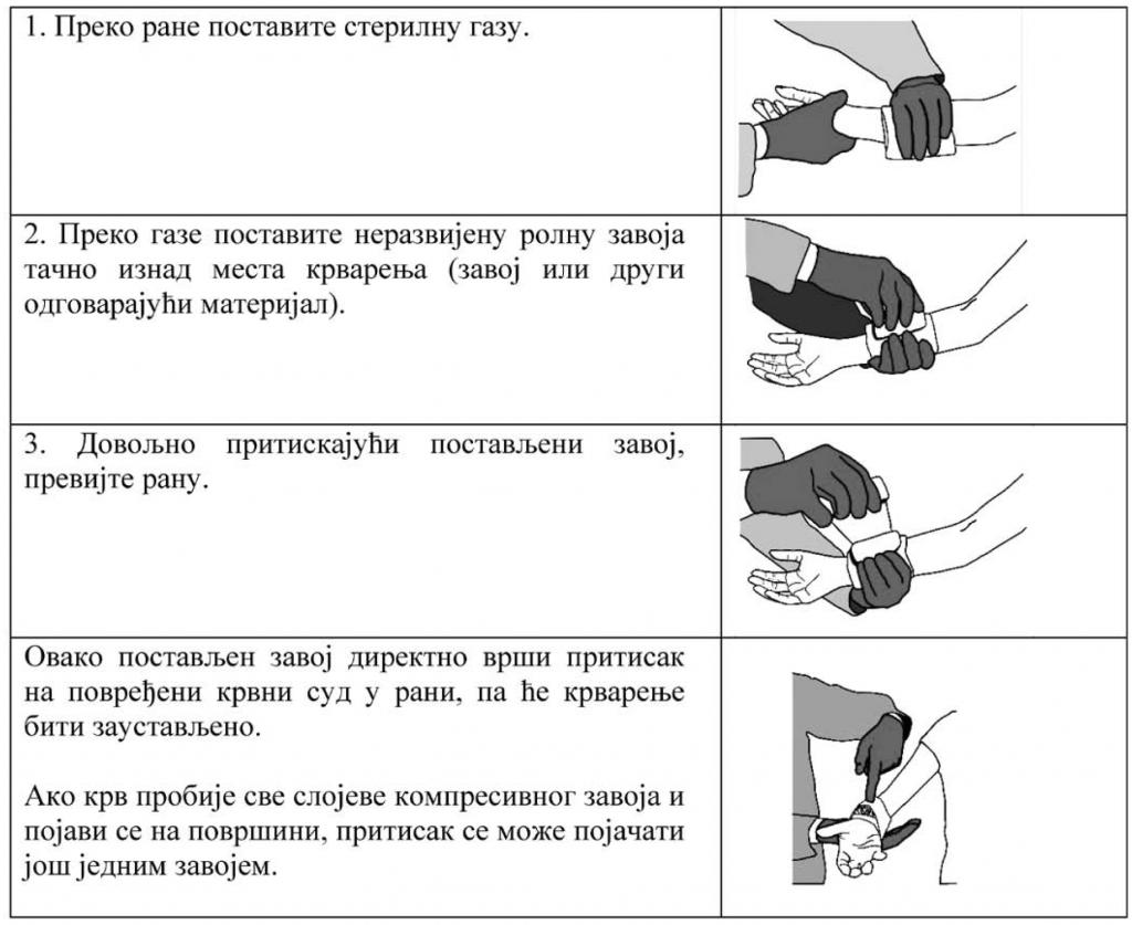 osnovni-postupci-pruzanja-prve-pomoci-kompresivni-zavoj